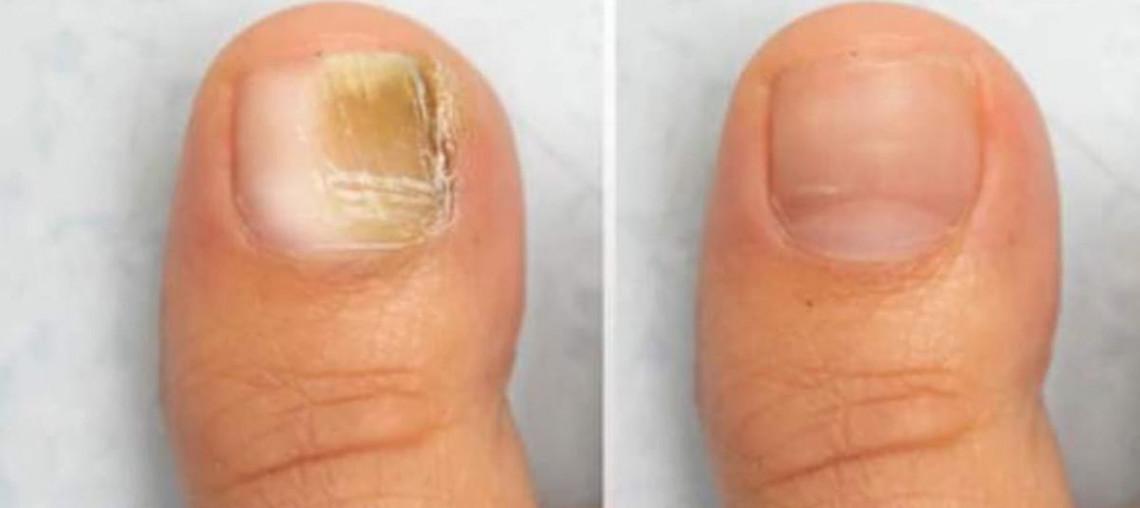 Traitement maison naturel et facile pour en finir avec la mycose des ongles