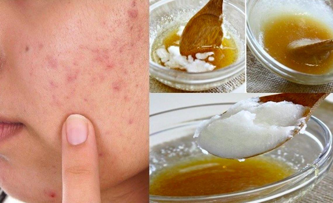 Masque maison et naturel contre l'acné (3 ingrédients seulement!)