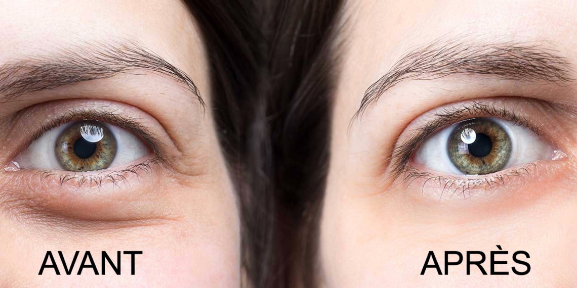 Voici 5 trucs faciles et efficaces pour réduire l'apparence de vos cernes!
